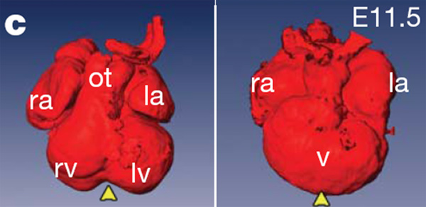 4_3-камерные сердца