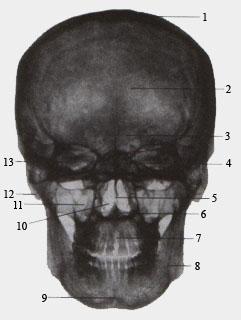 Рентгеновская картина черепа взростлого человека (вид спереди)